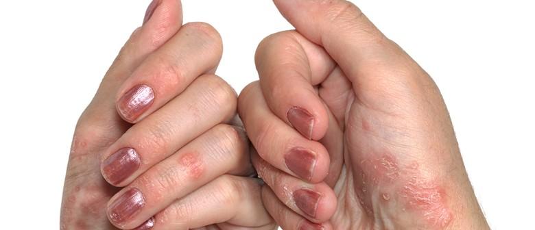 Arthritis KEYS  Ankylosing Spondylitis / Psoriatic Arthritis